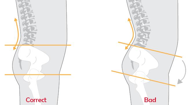 lower-cross-syndrom-pelvic-tilt