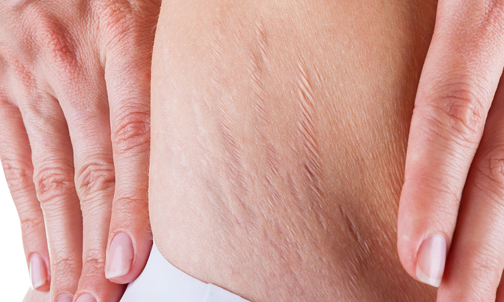 What Causes Cellulite in Men and How to Fix It