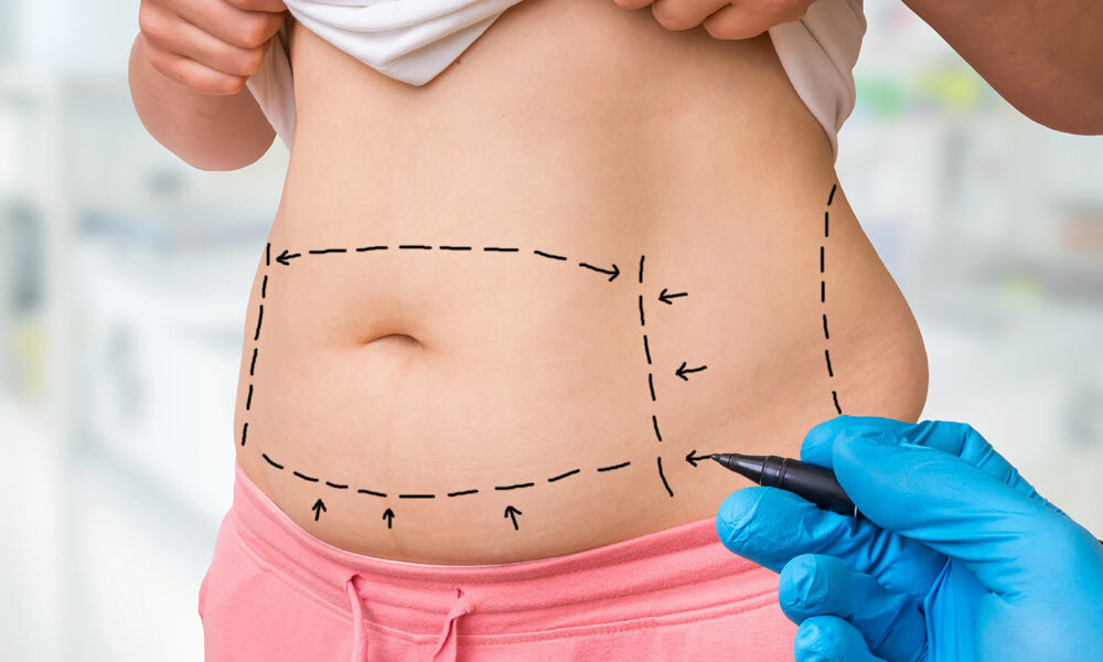 7 Effects of Weight Gain After Tummy Tuck (How to Avoid It)